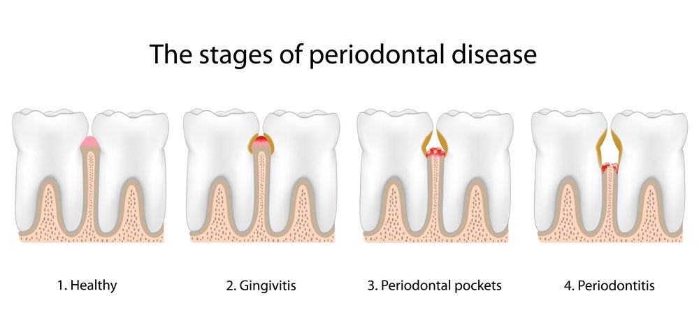 stages-of-periodontitis