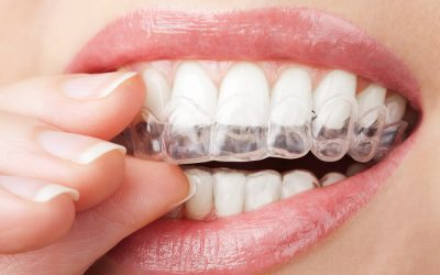 5 things you need to know before getting braces