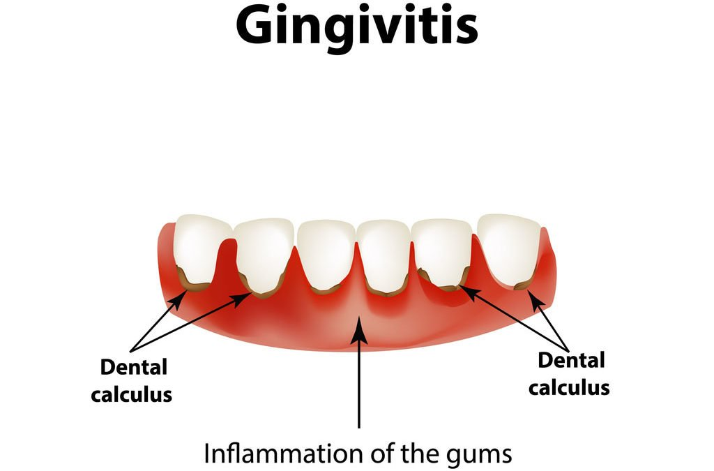 Gingivitis Treatment – What Causes Gingivitis And How Is It Treated