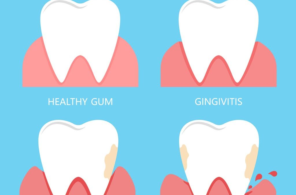 Stages of gum disease and infection
