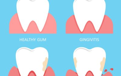 Gum infection treatment: How do I know when it is urgent?