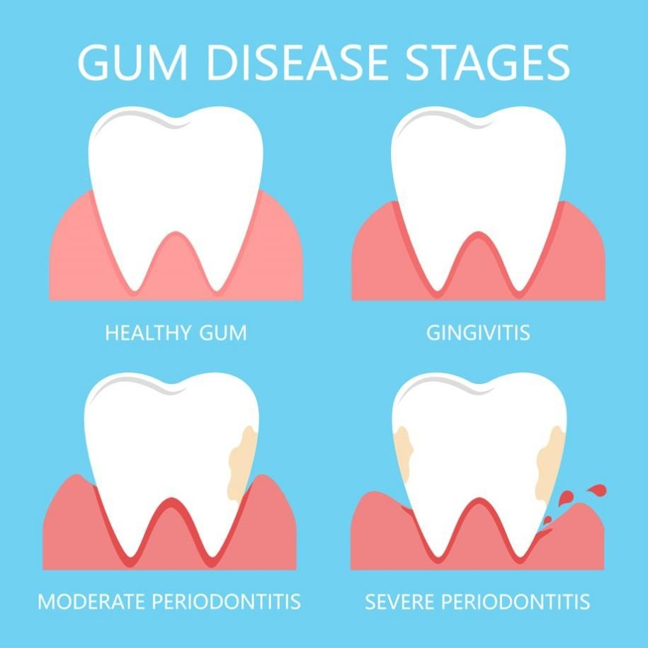 gum disease stages illustration