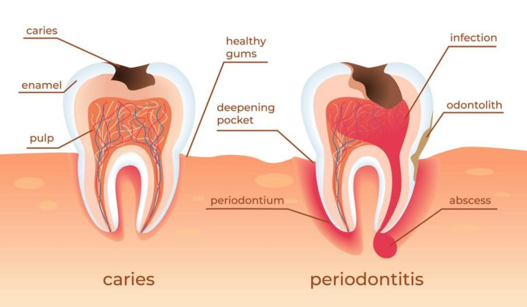 caries and periodontitis illustration