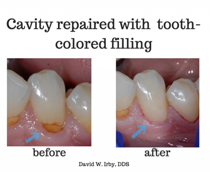 repaired cavity - before and after