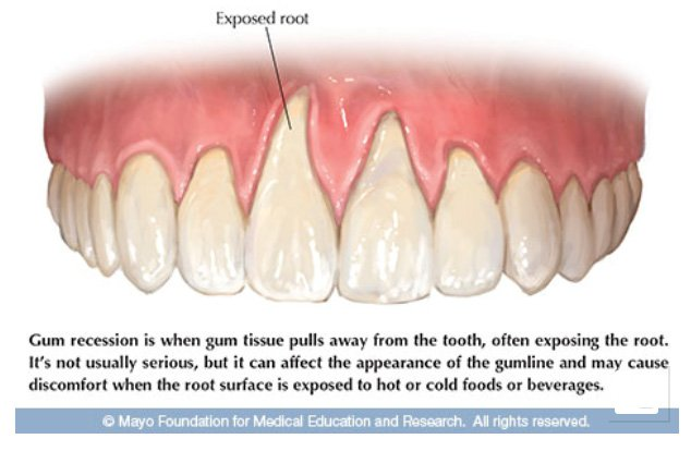 exposed root due to gum recession illustration