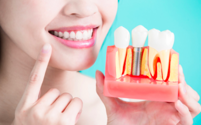 Wanna get a dental implant? Here's what you should know beforehand.